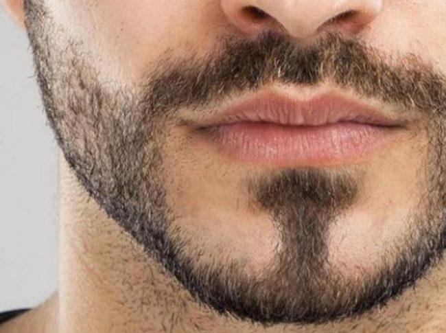 Cara Menumbuhkan Kumis dengan Cepat Secara Alami